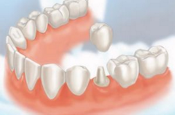 Prietenul meu francez a ales Dental Praxis