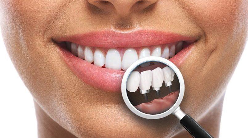 In loc de proteza, implant dentar pentru toata gura